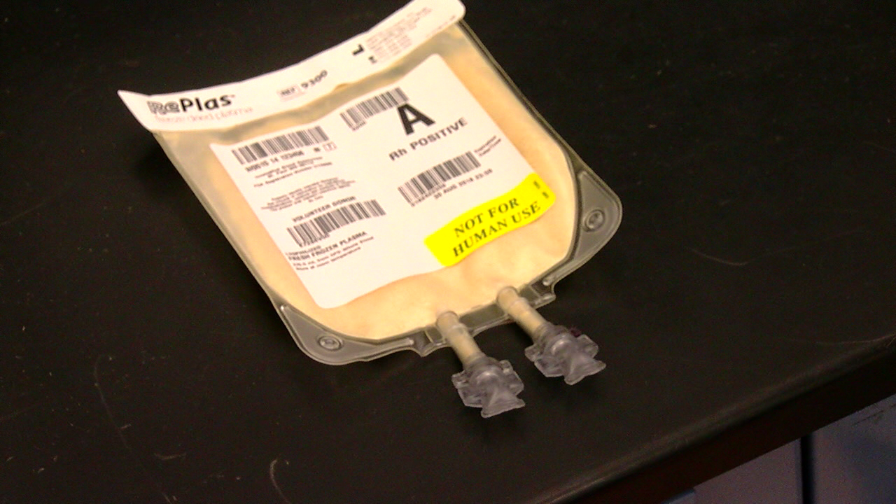 New freeze-dried plasma could be used to help the military (WKRC)