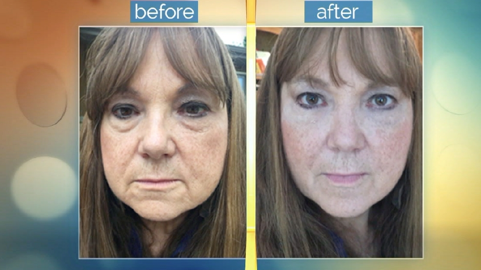 Look Years Younger with Plexaderm
