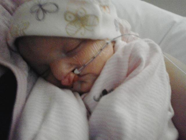 Eden's daughter was born with a clef lip and is still receiving treatment at Integris.